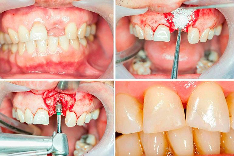 осложнения после костной пластики