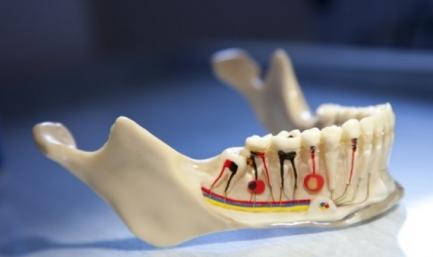 Хронический периодонтит зуба