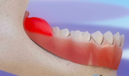 Лечение перикоронита в стоматологии Новодента