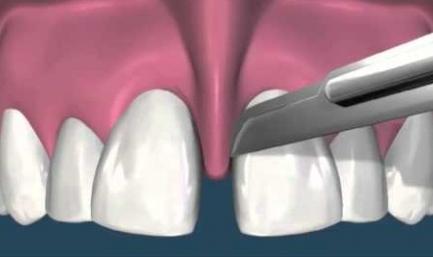 Пластика уздечки верхней губы в стоматологии