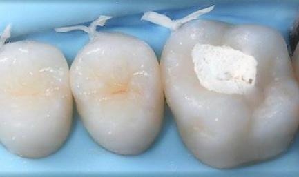 Пломбирование зуба временной пломбой