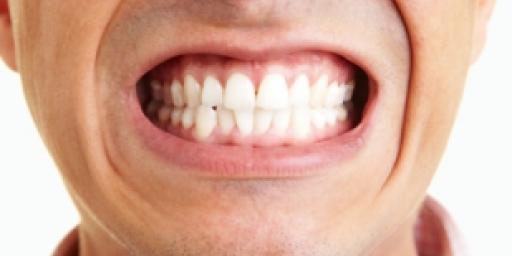 Бруксизм или скрежет зубами