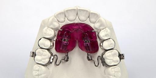 Дисталяция моляров верхней челюсти