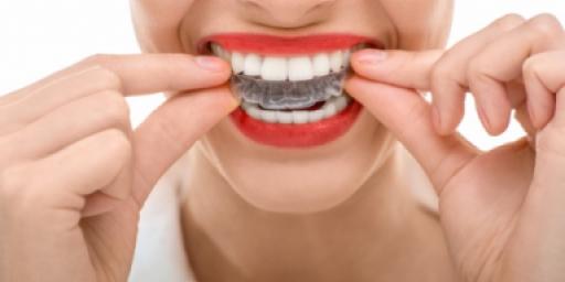 Системы отбеливания зубов в домашних условиях