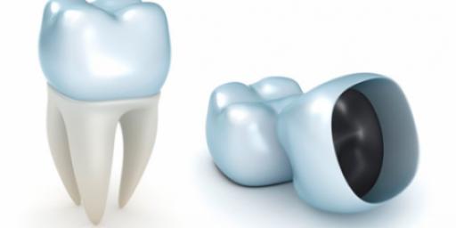 Восстановление зуба при помощью коронки