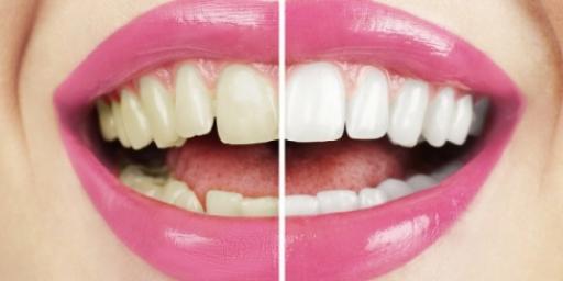 Зубы желтые