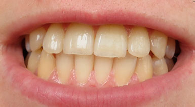 Желтые зубы у взрослого