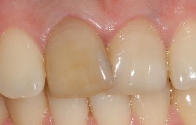 Желтый зуб при повреждении нерва